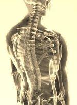 Indonesia Scoliosis Center membantu mengatasi permasalahan tulang belakang Anda.