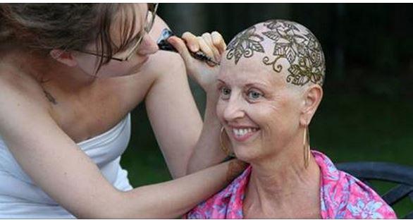 بالصور : نقوش رائعة بالحناء لتعويض الشعر الذي قضى عليه العلاج الكيماوي لمصابات بالسرطان