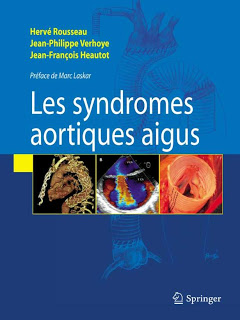 Syndromes aortiques aigus - Springer