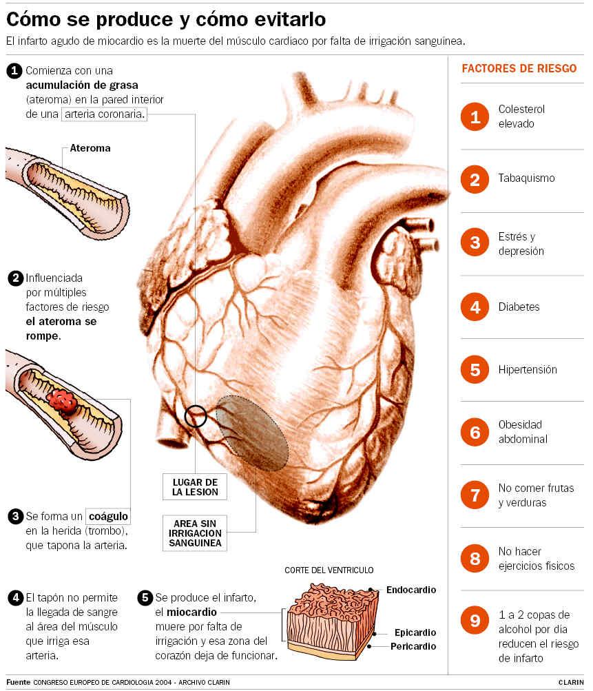 El tratamiento de la insuficiencia varicosa de las extremidades inferiores