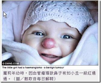 英國 小丑 紅鼻子手術 女孩