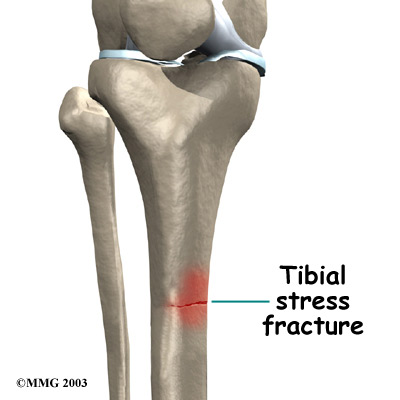 causes of athletes stress fractures In the non-athlete, stress fractures may be caused by a number of factors  overuse, or strain in the foot can cause a fatigue fracture which is.