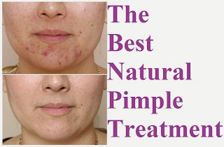 The Best Natural Pimple Treatments