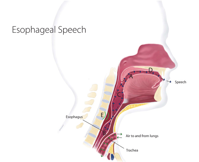 my voice methods of speaking after laryngectomy
