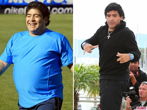 Soccer Player Maradona Did It Florida Surgical Weight Loss Centers