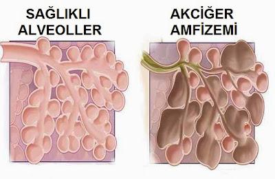 akciğer amfizemi