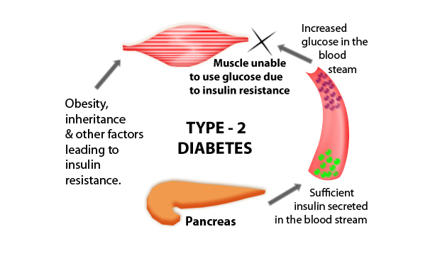 Diabetes Mellitus Type 2 Symptoms, Causes, and Treatment
