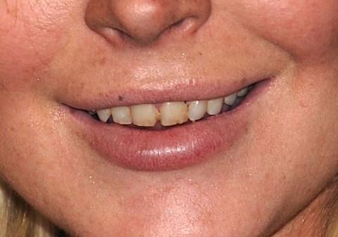 lindsaylohan-teeth2