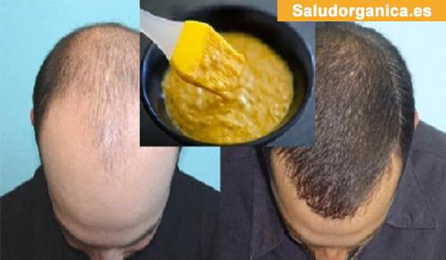 La alopecia después de la permanente química en