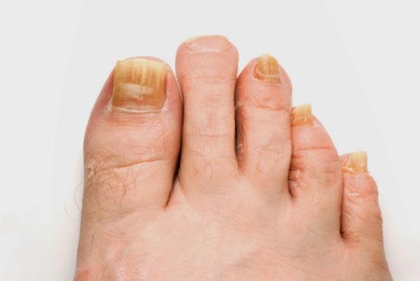 El tratamiento del hongo sobre el dedo de la mano por los medios públicos