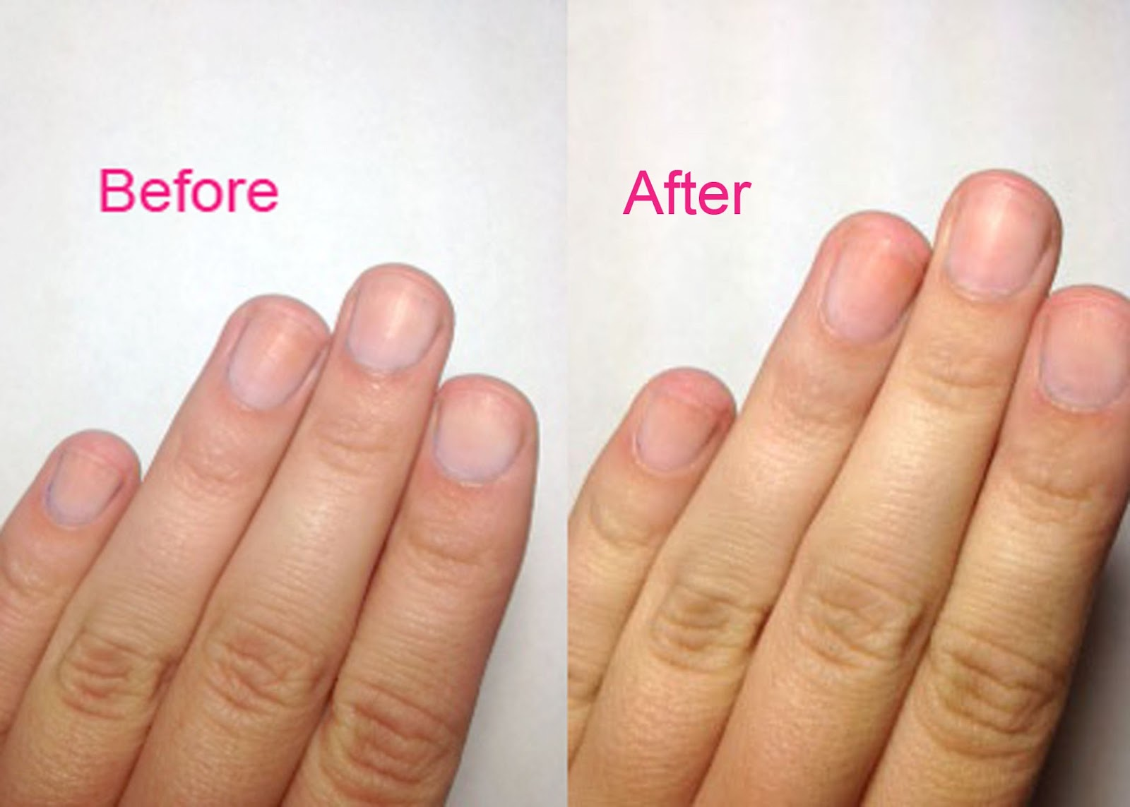 How to Make Your Fingernails Look Good