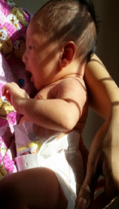 penyebab bayi kuning