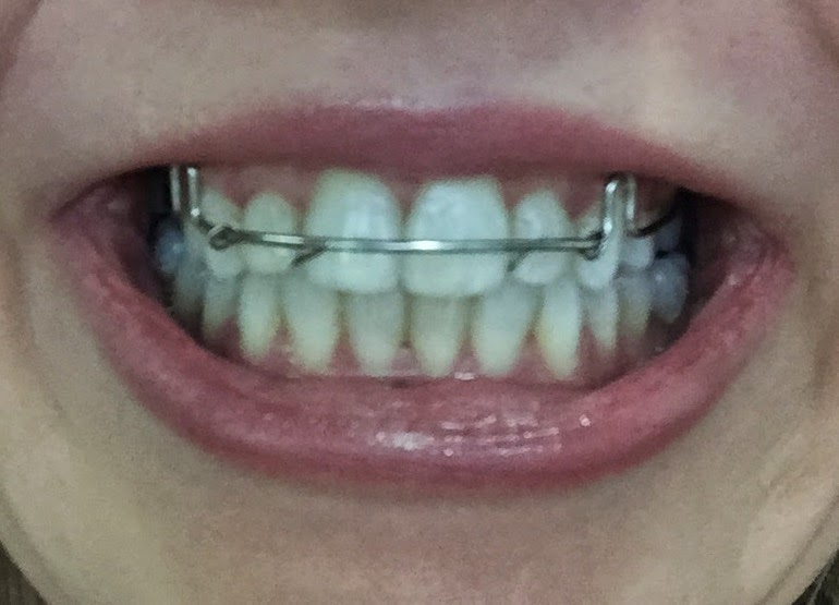 Acceledent Review: Braces off 5 Months Early!