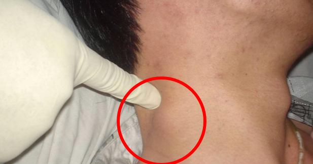 Увеличенные лимфоузлы у беременных на шее 16