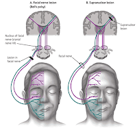 Etiology and Pathophysiology of Bell's Palsy