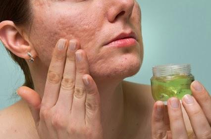 Curar el acné de adentro hacia afuera