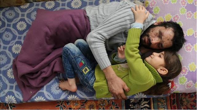 Bocah Suriah Ini Ingin Donorkan Matanya Untuk Sang Ayah, Sedih Bacanya-Redaksi Terbaru