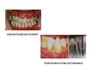 Gingivitis necrotizante