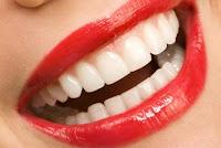 blanqueamiento dental dientes blancos