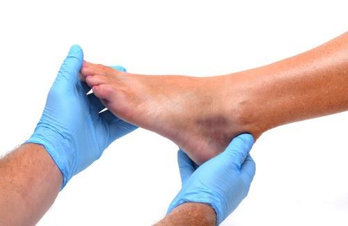 Oinchaçonos pés e tornozelos é comum e usualmente não é motivo de preocupação, principalmente se ficamos de pé por muito tempo ou caminhamos muito. Masse essas partes permanecem inchadas por muito tempo ou os inchaços vêm acompanhados de outros sintomas, pode ser sinal de um grave problema de saúde. Conheça alguns dos principais motivos pelos quais nossos pés e tornozelos podem inchar