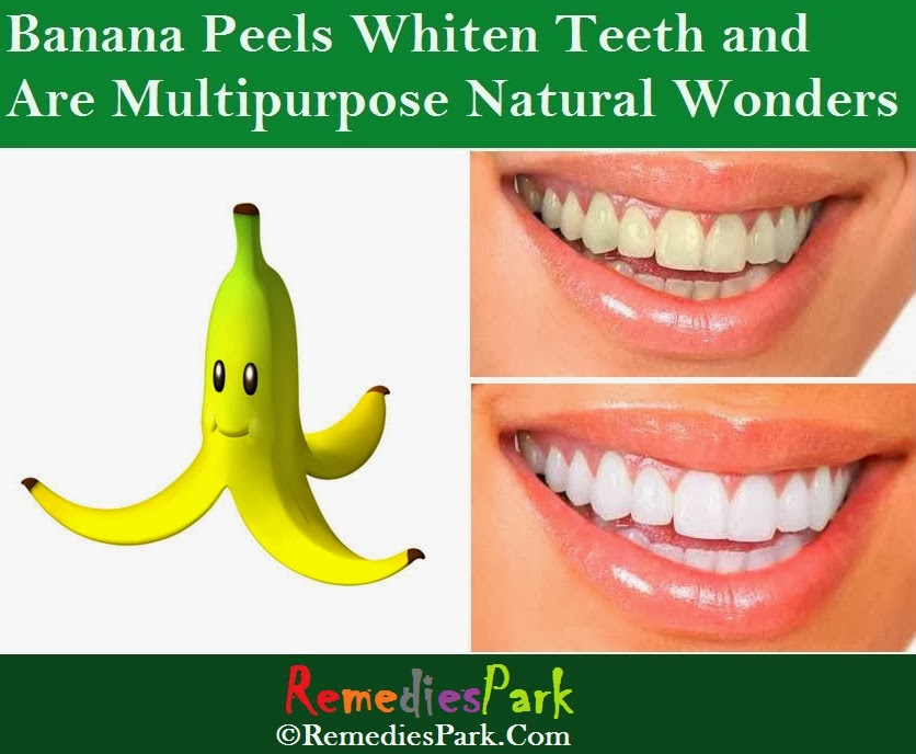 banana peel whitening essay Clean your teeth with strawberries, banana peel and bicarbonate of far from whitening comes out and says she has loved a woman in powerful essay.