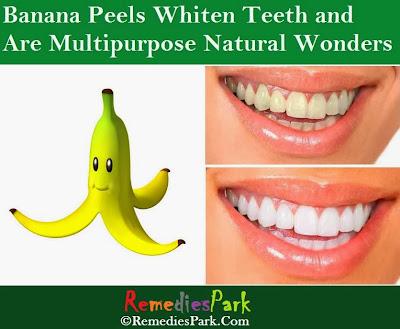 Banana Peels Whiten Teeth and Are Multipurpose Natural Wonders