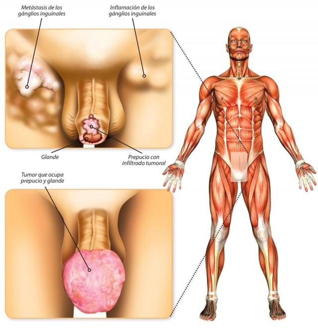 La urología aumentar el miembro