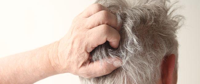 Eczema On Scalp