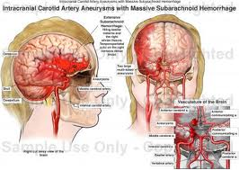 subarachnoid hemorrhage more condition_symptoms