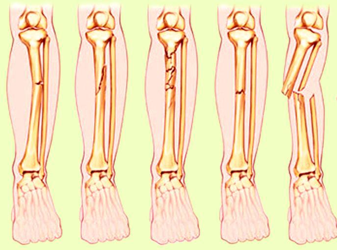 Kelainan Dan Gangguan Pada Tulang Kelainan Dan Gangguan Pada