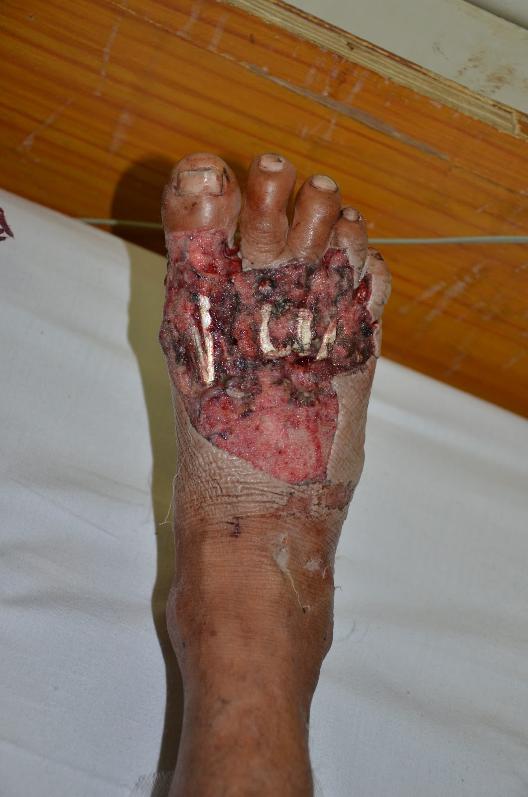CRUSH INJURY FOOT - RUN OVER - FREE LD FLAP COVERAGE ...