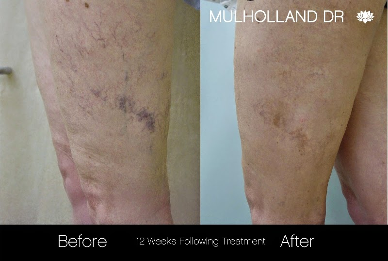 Leg Vein Treatment - before and after photos