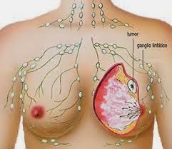 Cara Cepat Sembuhkan Kanker Payudara Secara Tradisional