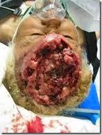 pengobatan tumor otak alami, obat kanker otak, pengobatan kanker otak