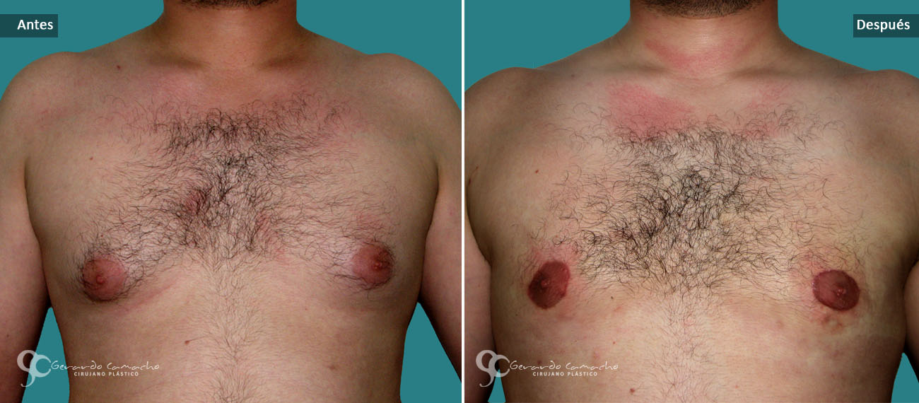Obtener los senos de los hombres