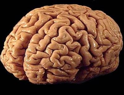 Kenali Gejala Kanker Otak!