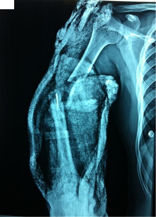O R T O C R I T I C A: Extremidad torácica severamente lesionada