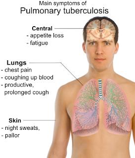 Pulmonary-tuberculosis-symptoms