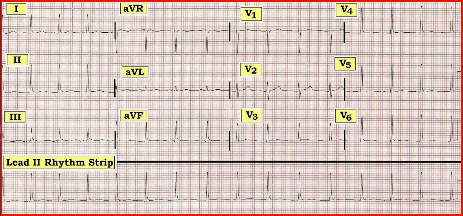 Figure 1 12 Lead ECG And II Rhythm Strip Obtained From A 43 Year Old Man With Influenza Like Illness Atypical Chest Pain