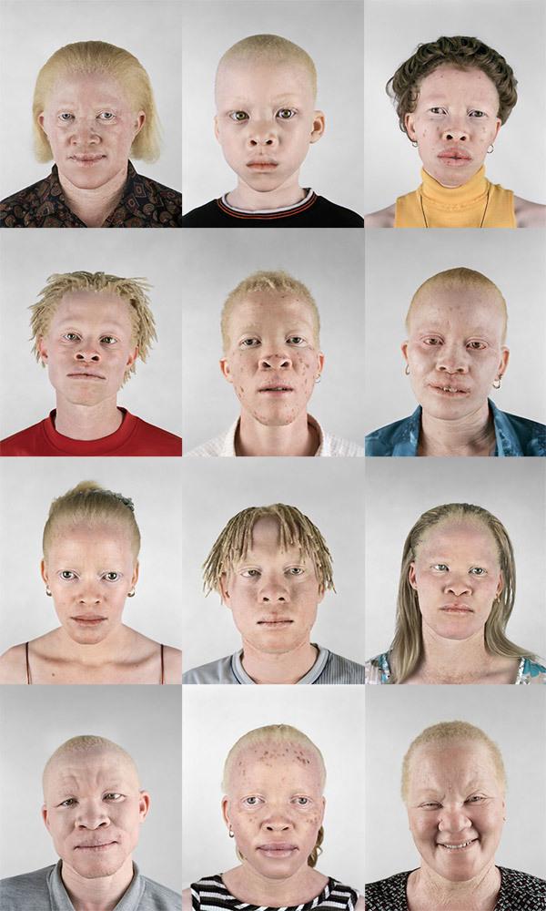 Albino Project   MTAA KWA MTAA BLOG