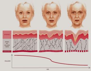 Berikut ini adalah Manfaat Kolagen yang terbukti baik untuk Anda. Tubuh kita sangat membutuhkan kolagen sebagai penguat pembuluh darah dan membuat kulit kencang seperti  serta memperkuatnya. Bagi golongan usia dewasa keatas, produksi kolagen semakin lama semakin berkurang. Karena faktanya pada usia 25 tahun, tubuh akan mulai kehilangan kolagen sebanyak 1,5 persen setiap tahunnya. Oleh sebab itu bagi Anda yang sudah usia diatas 25 tahun keatas dapat mengkonsumsi suplemen kolagen untuk mempercepat proses pemulihan. Seperti yang dikutip dari female.kompas.com berikut ini beberapa manfaat kolagen untuk tubuh.