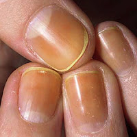 unghie gialle, impacco sbiancante per le unghie, rimedi naturali