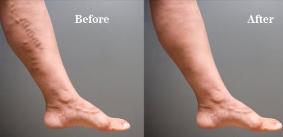 10 Natural and Herbal Home Remedies to Get You Rid of Varicose Veins Fast