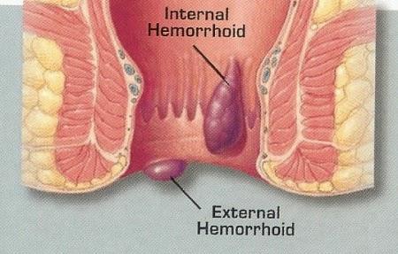 Chennai Piles - Hemorrhoids Specialty Treatment Clinic, Velachery, Chennai, Tamil nadu, India, dr.sendhil kumar, panruti