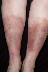 Tratamente si remedii naturiste impotriva dermatitei de staza