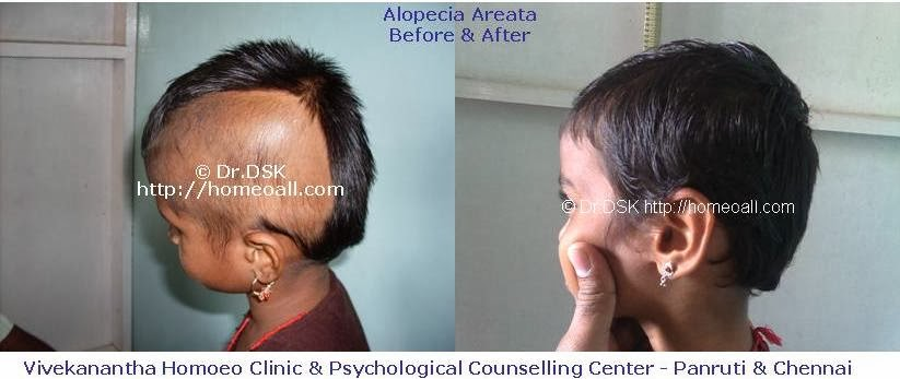 Hairstyles For Alopecia Areata : Vivekanantha homeo clinic & psychological counseling centre
