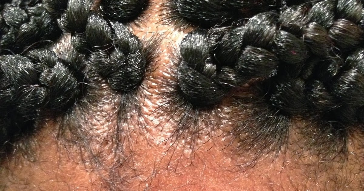 Natural Hair Bumps On Scalp