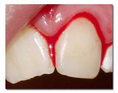 7 Most Common Causes of Dental Problem 7 Most Common Causes of Dental Problem new picture