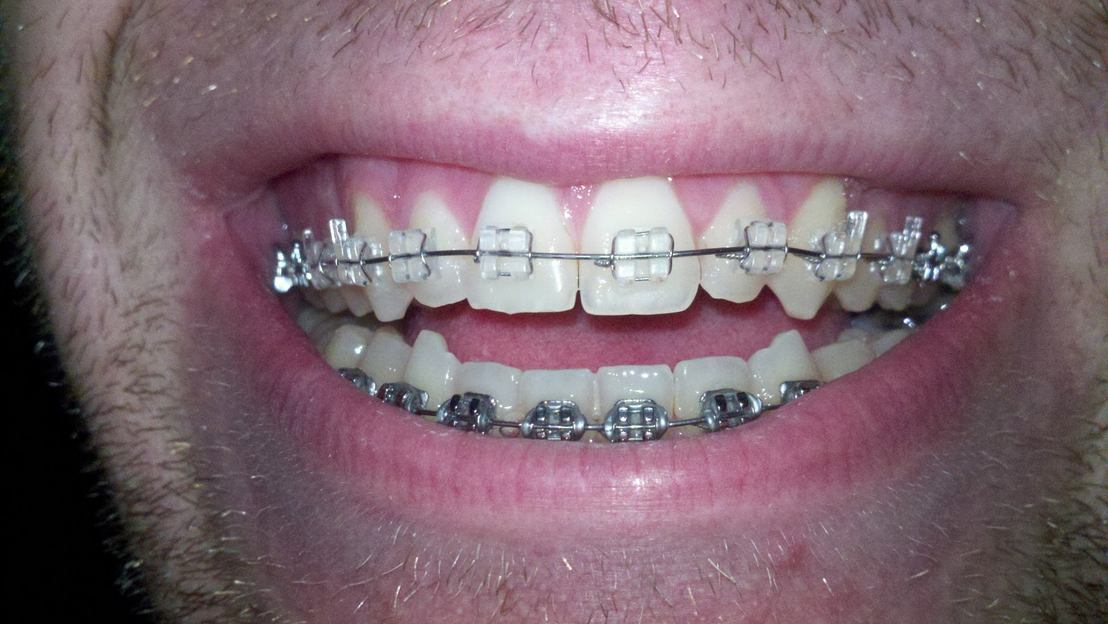 how to fix open bite with braces