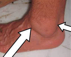 How to reduce foot swelling post pregnancy